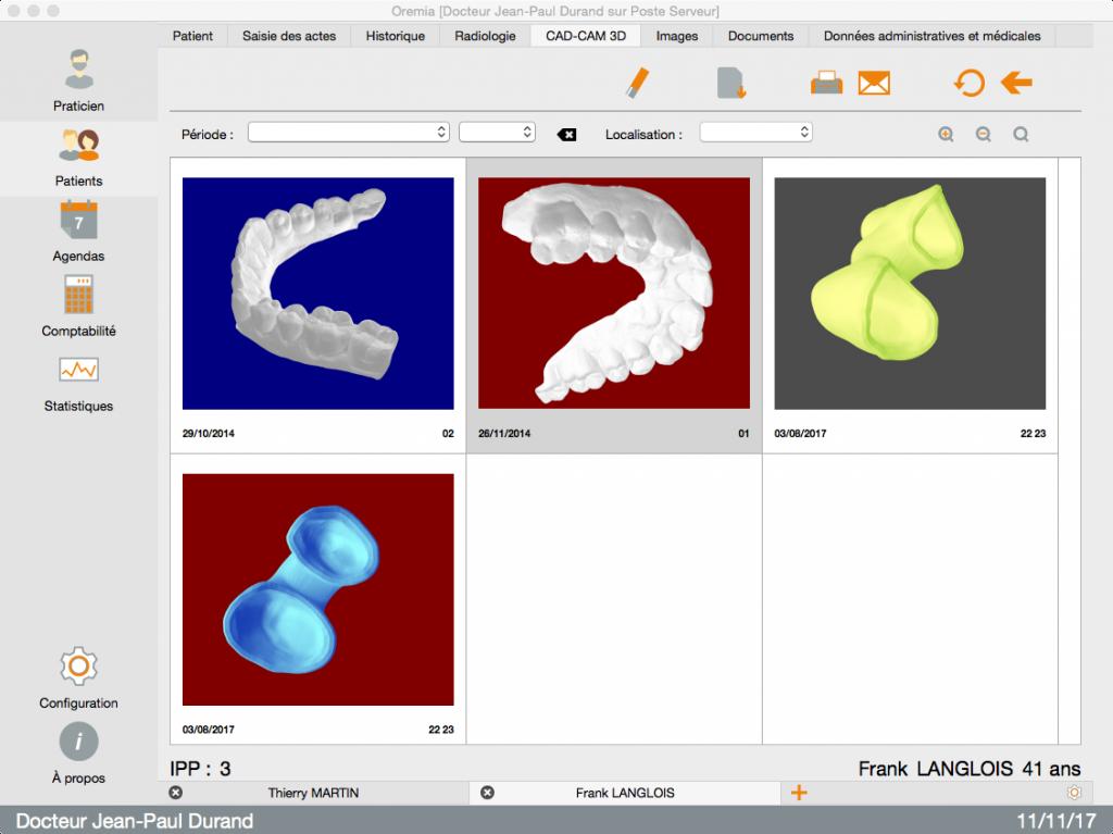 fenêtre CAD CAM 3D visualisation 3D fichier STL dans Oremia